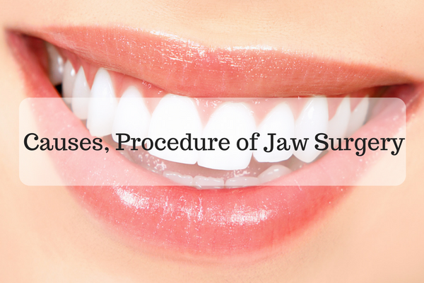 Causes, Procedure of Jaw Surgery
