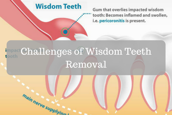 Challenges of Wisdom Teeth Removal