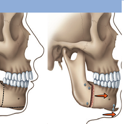 Reconstructive Jaw Surgery