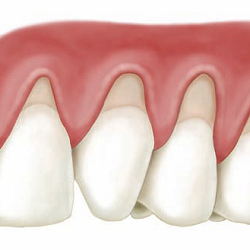 soft oral tissue surgery