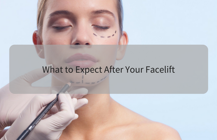 What to Expect After Your Facelift